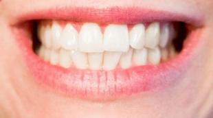 Отбеливание зубов куркумой в домашних условиях